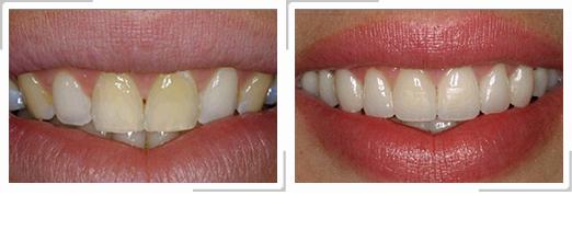 Avant / Après : Facette dentaire